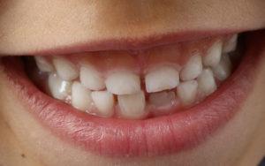 Early Interceptive Dental Treatment