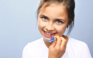 Braceless Choice | Early intervention dental treatment