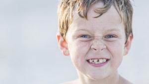 Avoiding braces